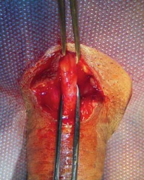 Photo of Penis Lengthening Surgery