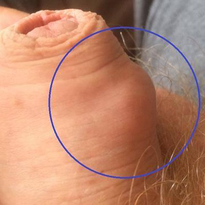 Shaft hard bump on Hard bump