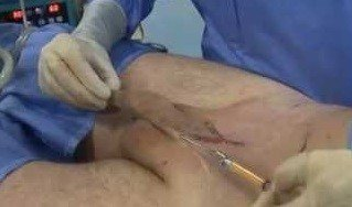 Penis Lengthening Scarring