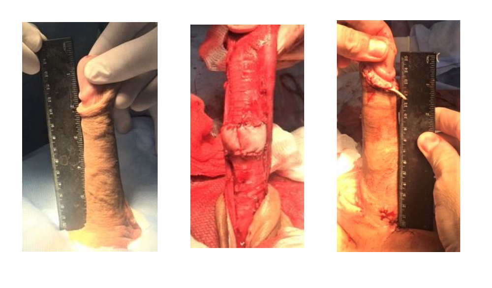 Real Penile Lengthening Surgeon Professor Kurbatov Dmitry